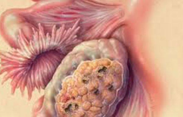 הרבה נשים משתמשות בזה, אך הן לא יודעות שעל פי מחקרים, זה מכפיל את הסיכון לחלות בסרטן השחלות