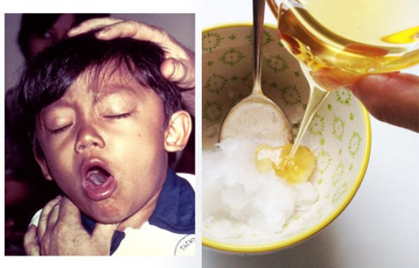 שילוב של שמן קוקוס ודבש יוצר תרופה רבת עוצמה שתעצור את השיעול שלכם באופן מיידי
