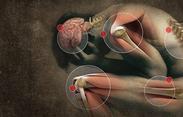 10 תסמינים של פיברומיאלגיה שאתם חייבים לדעת אותם!