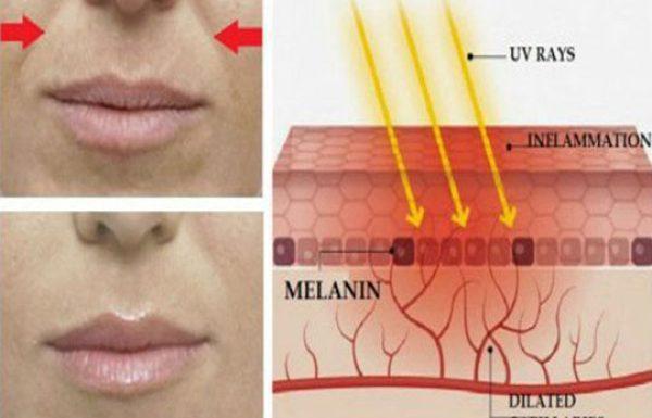 5 דרכים טבעיות להקטין את הקמטים סביב הפה