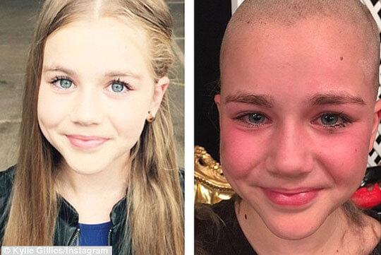 בת 11 הקריבה את שיערה הבלונדיני בשידור חי בשביל לגייס כסף עבור חולי סרטן