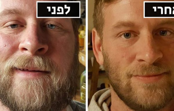 10 תמונות של לפני ואחרי שמראות מה קורה כשאתם מפסיקים לשתות