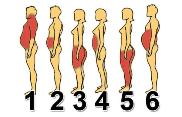 בידקו באיזה איזור יש לכם שומן וכך תוכלו לשרוף אותו
