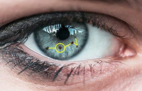 אם יש לכם כתם בקשתית העין כדאי שתדעו את זה