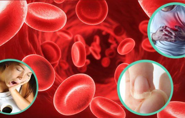 התסמינים והגורמים לחוסר ברזל בדם וכיצד להעלות אותו