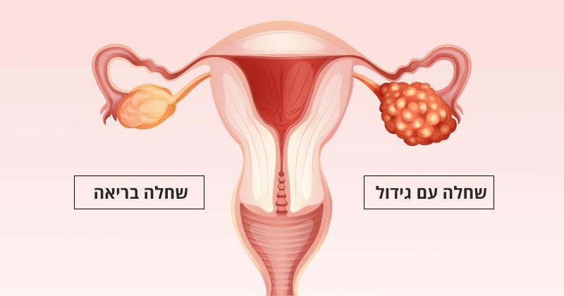 5 הרגלי אכילה שיעזרו לכם להוריד את הסיכוי לחלות בסרטן השחלות