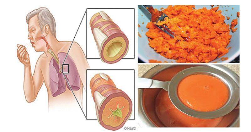 סירופ עצמתי זה, יעזור לכם להיפטר מהשיעול הטורדני וינקה את הליחה מהריאות!