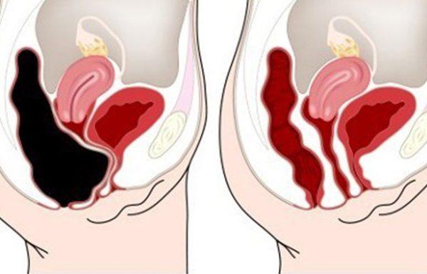 תלחצו על הנקודה הזו בבטן שלכם ותסלקו רעלים מהגוף