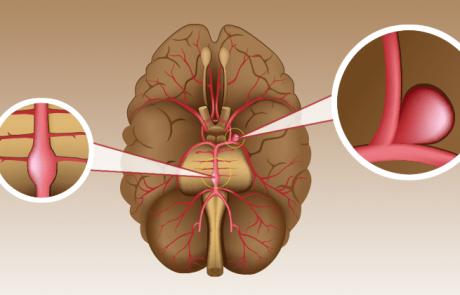 אלה הם התסמינים והגורמים למפרצת מוחית ודרכי מניעה וטיפול