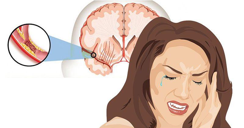 9 תסמינים מוקדמים, המצביעים על כך שהיה לכם שבץ מוחי שקט