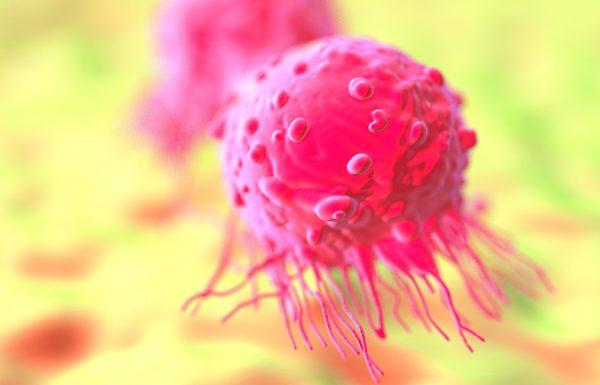 זה אחד הגורמים העיקריים להתפתחות סרטן השד