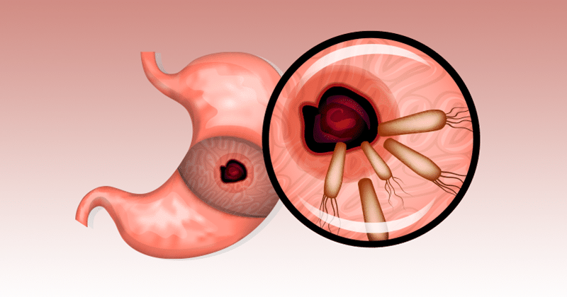 איך להיפטר מהחיידקים שגורמים לכם נפיחות, צרבת, רפלוקס, שלשול וסימפטומים אחרים