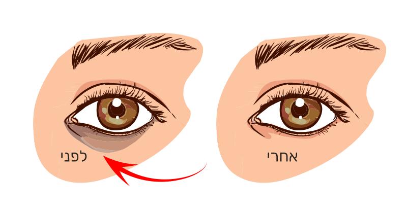 זו משמעות העיגולים השחורים מתחת לעיניים שלכם