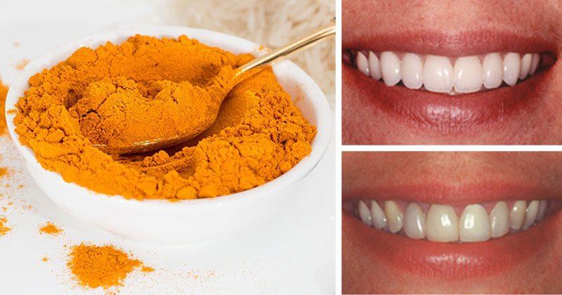 5 צעדים פשוטים וקלים לשיניים בריאות וחיוך לבן יותר