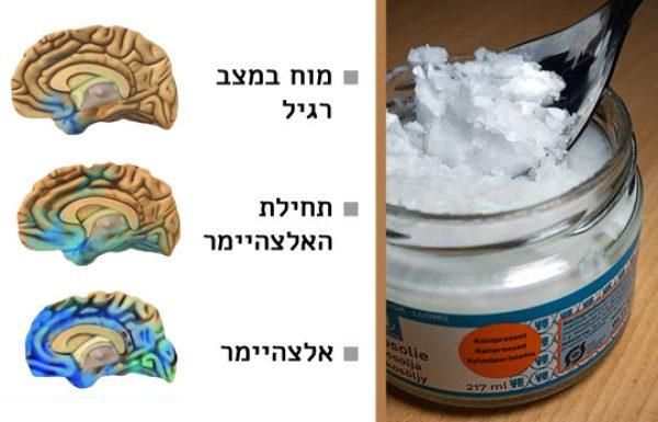 קראו וגלו כיצד שמן הקוקוס יכול להציל את המוח שלכם מאלצהיימר