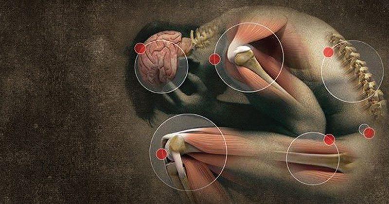 פיברומיאלגיה – 10 תסמינים שאסור לכם להתעלם מהם