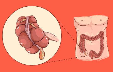 5 איתותים לכך שיש לכם דלקת חמורה בתוספתן