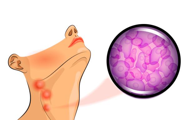 עד כמה אוכל אורגני יכול להוריד את הסיכון שלכם לחלות בסרטן?