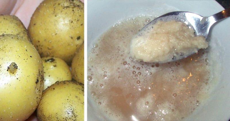 12 שימושים מדהימים במיץ תפוחי אדמה לריפוי הגוף, שלא ידעתם עליהם