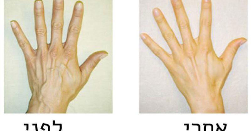 מראה צעיר לידיים שלכם, בעזרת 3 מרכיבים שיש אותם לכולנו במטבח