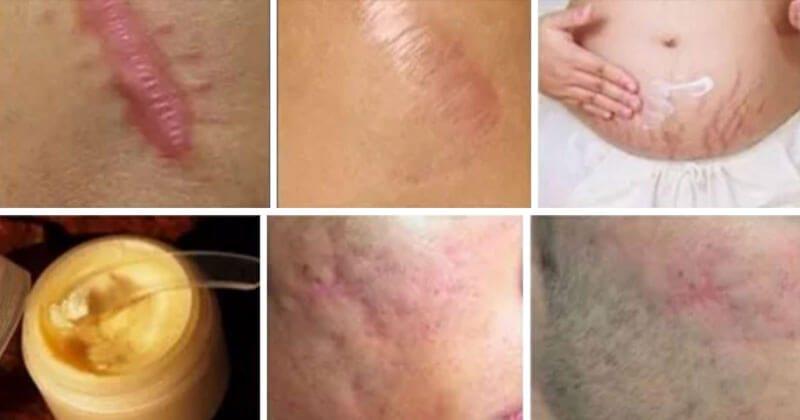 איך להסיר צלקות מכל חלקי הגוף בפחות מחודש