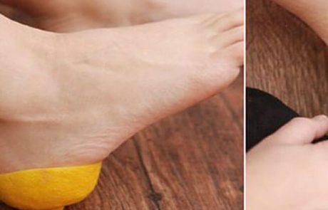 היא לקחה 2 חצאי לימון ושמה על כפות הרגליים, זה מה שקרה אחרי חצי שעה