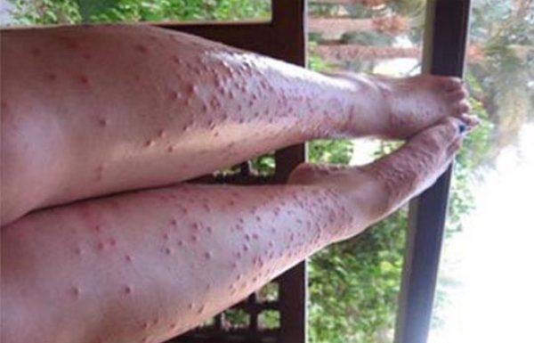 פעם היתושים היו הורסים לנו את הקיץ, אך מאז שלמדנו את הטריק הזה, לא נעקצנו יותר!