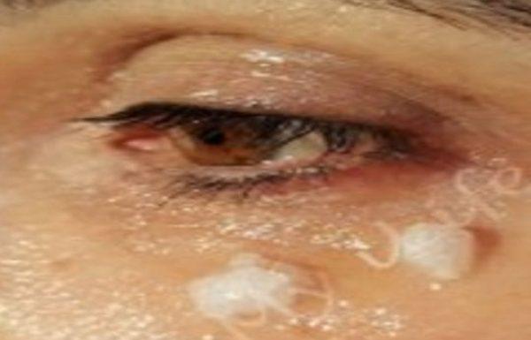 לפני השינה היא מרחה את שמן הקוקוס מתחת לעיניים, כשהתעוררה… לא יאמן!