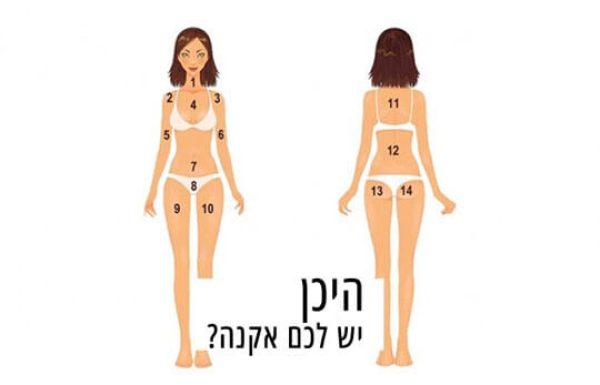 המיקום של האקנה על הגוף שלכם, יכול לגלות לכם מה הן המחלות שמהן אתם סובלים